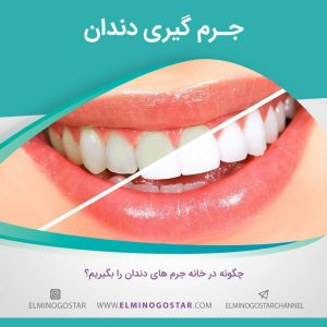 Scaling-teeth