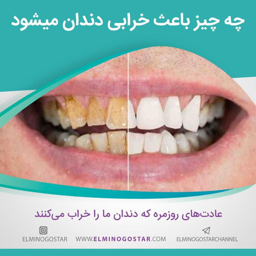 مراقبت از دهان و دندان